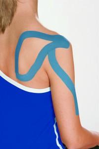 Kinesiotape - Schulter - Frozen Shoulder