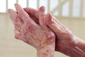 artrosi ma